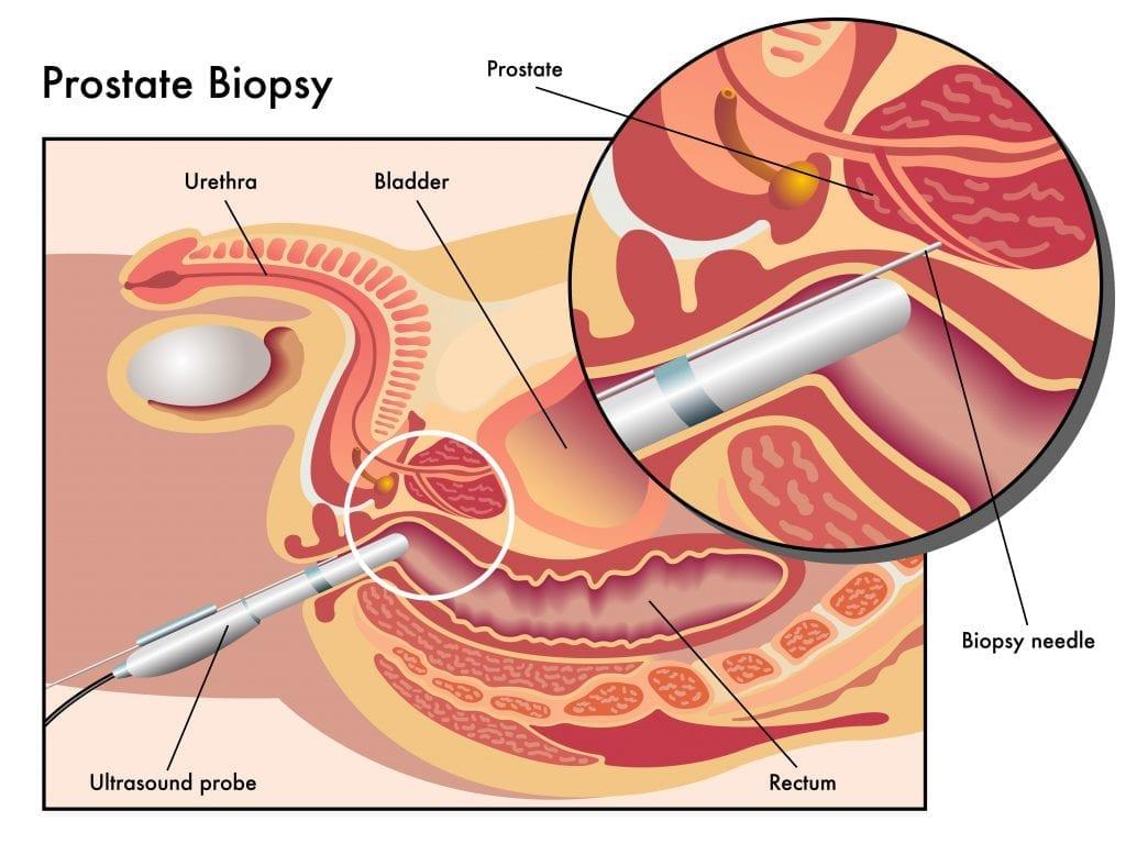 prostate-biopsy